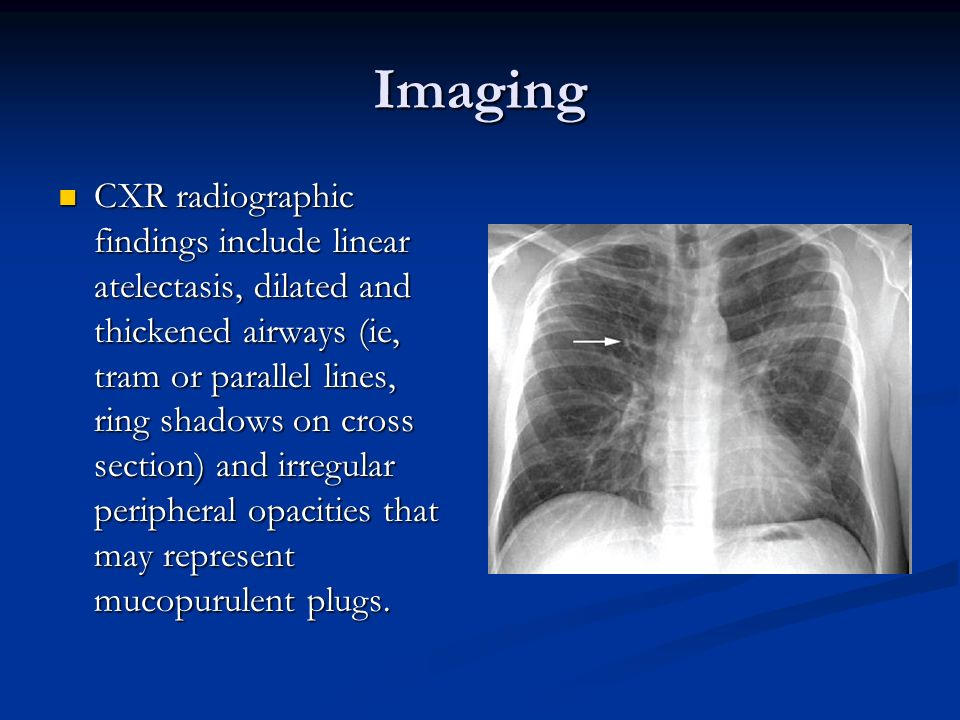 Imaging CXR radiographic findings include linear atelectasis, dilated and thickened airways (ie, tram or parallel lines, ring shadows on cross section
