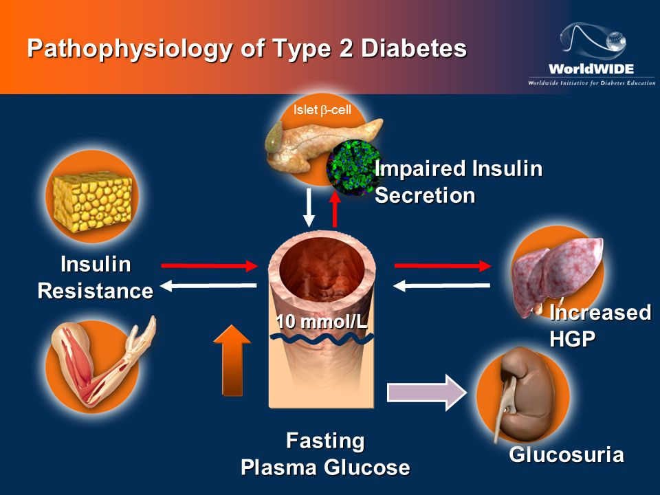 Fasting Plasma Glucose Pathophysiology of Type 2 Diabetes 10 mmol/L Islet -cell Impaired Insulin Secretion Insulin Resistance Increased HGP Glucosuria