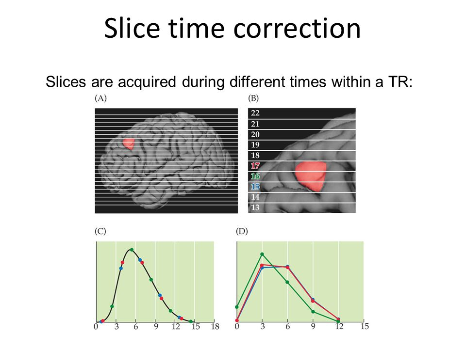 Slice time correction Slices are acquired during different times within a TR:
