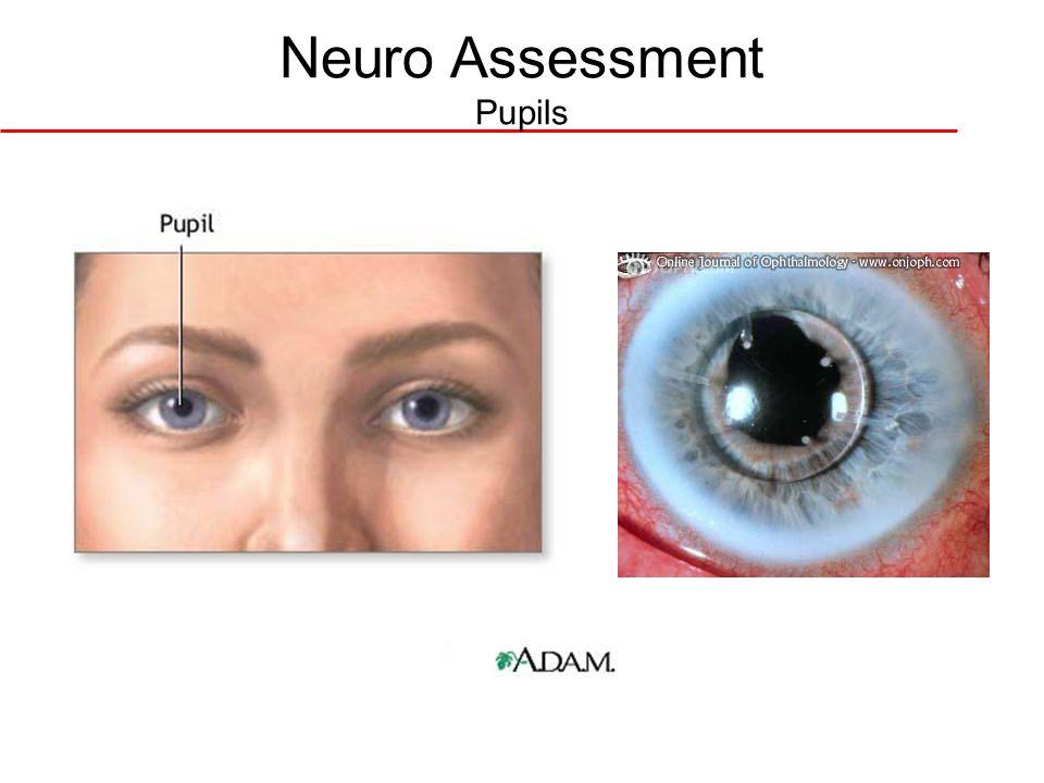 Neuro Assessment Pupils