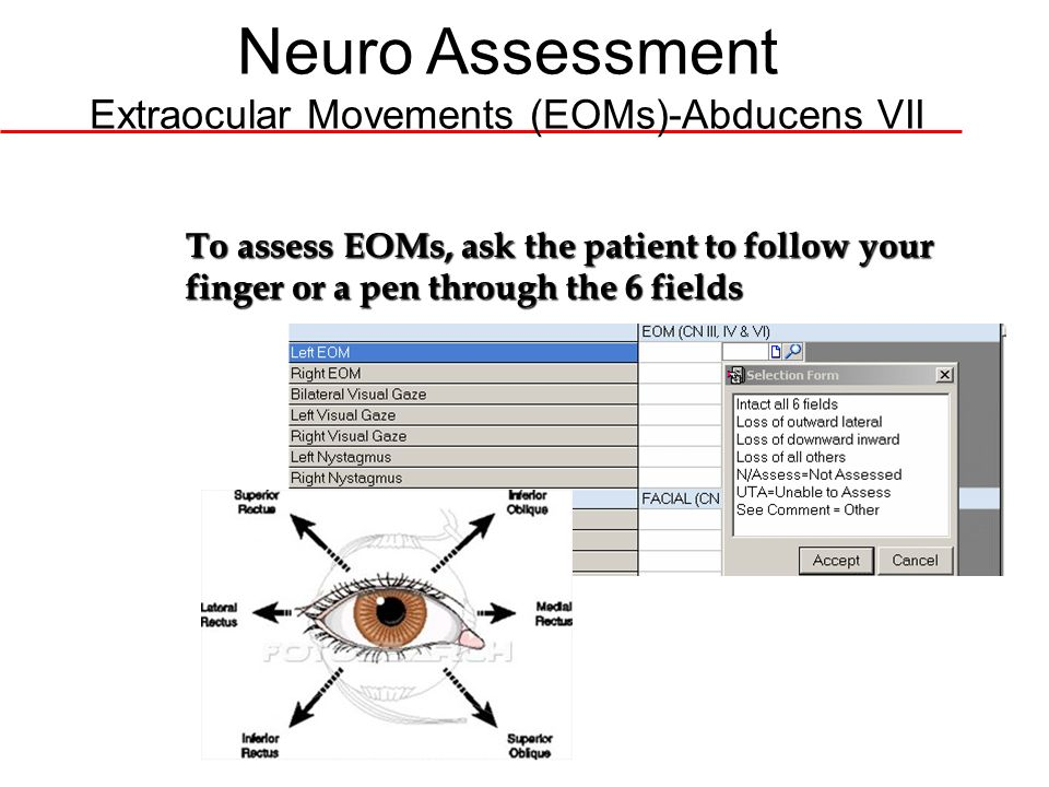 Neuro Assessment Extraocular Movements (EOMs)-Abducens VII To assess EOMs, ask the patient to follow your finger or a pen through the 6 fields