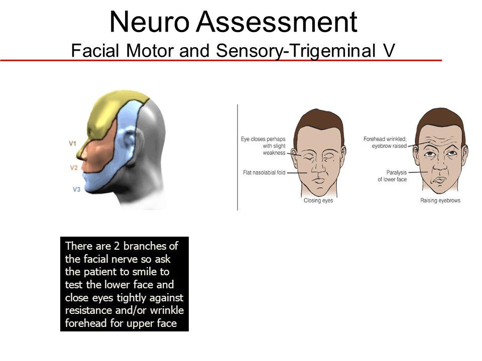 Neuro Assessment Facial Motor and Sensory-Trigeminal V Th ere are 3 bra nch es of the trig emi nal ner ve so tes t sen sati on in all 3 are as of the