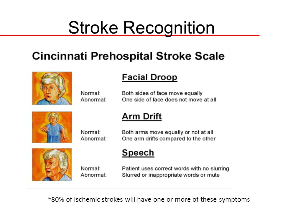 Stroke Recognition ~80% of ischemic strokes will have one or more of these symptoms