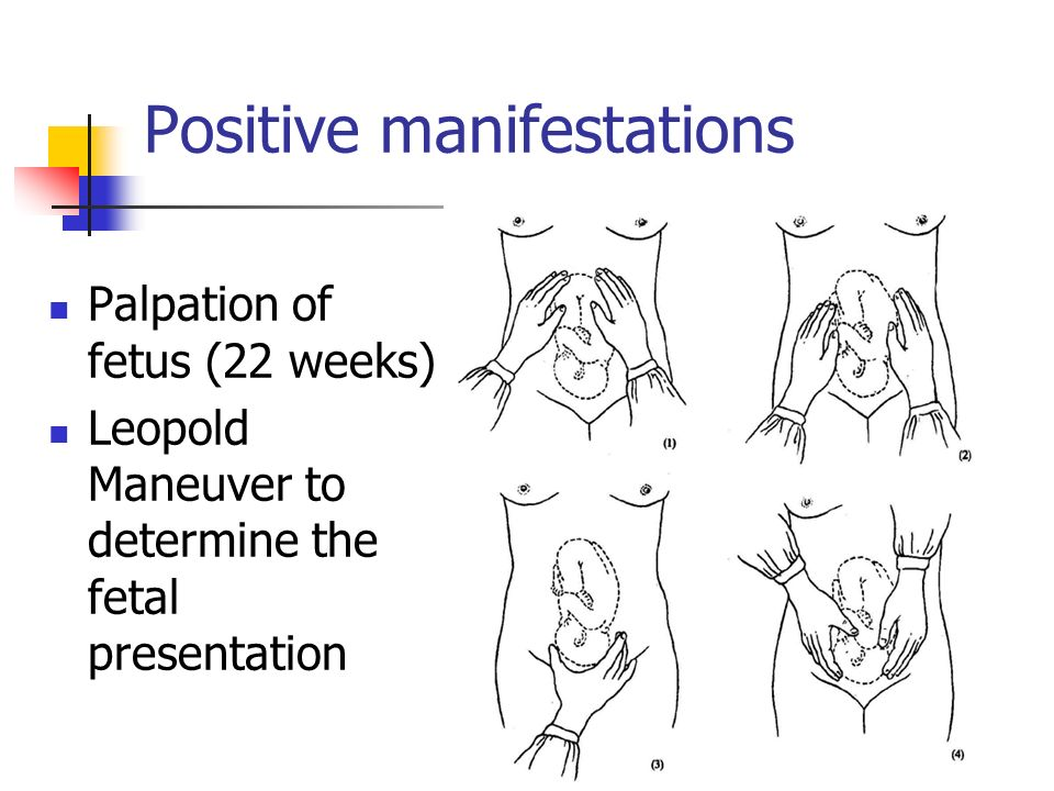 Positive manifestations Palpation of fetus (22 weeks) Leopold Maneuver to determine the fetal presentation