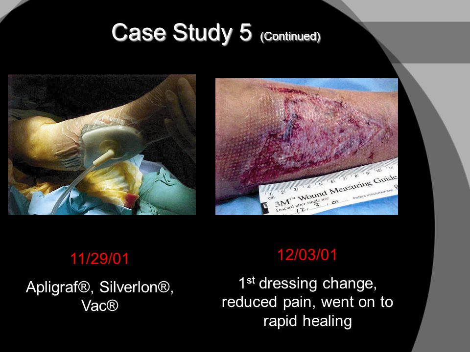 Case Study 5 (Continued) 11/29/01 Apligraf®, Silverlon®, Vac® 12/03/01 1 st dressing change, reduced pain, went on to rapid healing