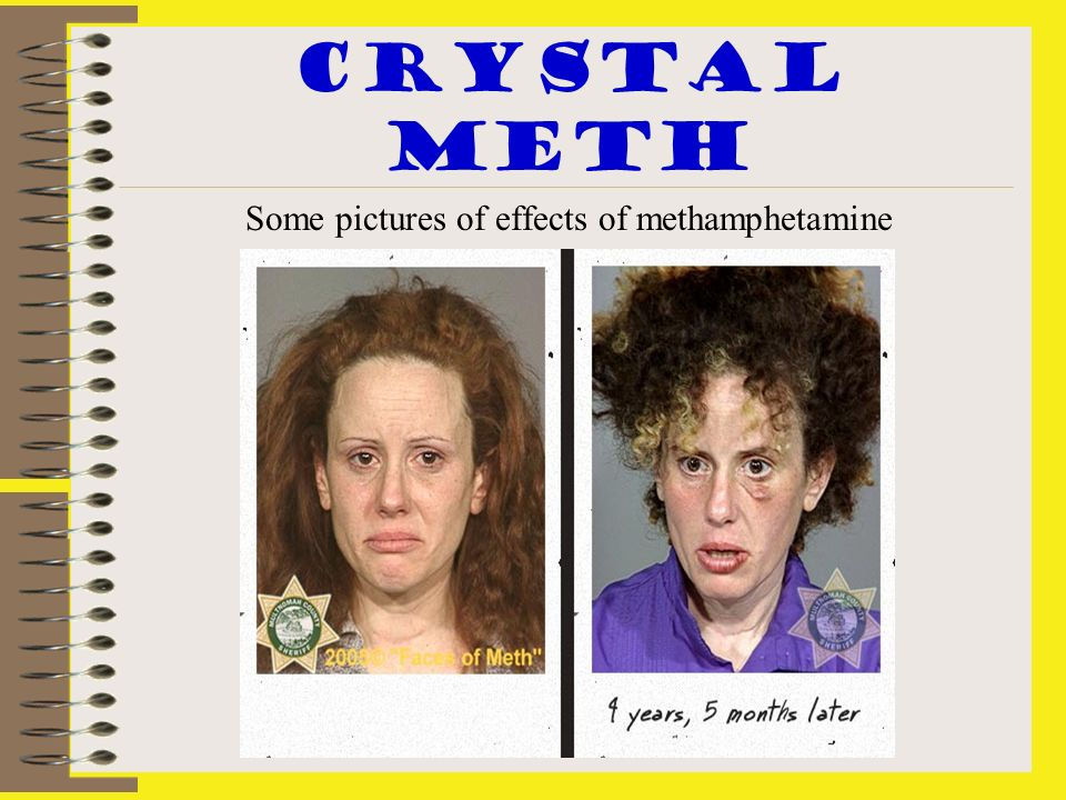 Crystal meth Some pictures of effects of methamphetamine