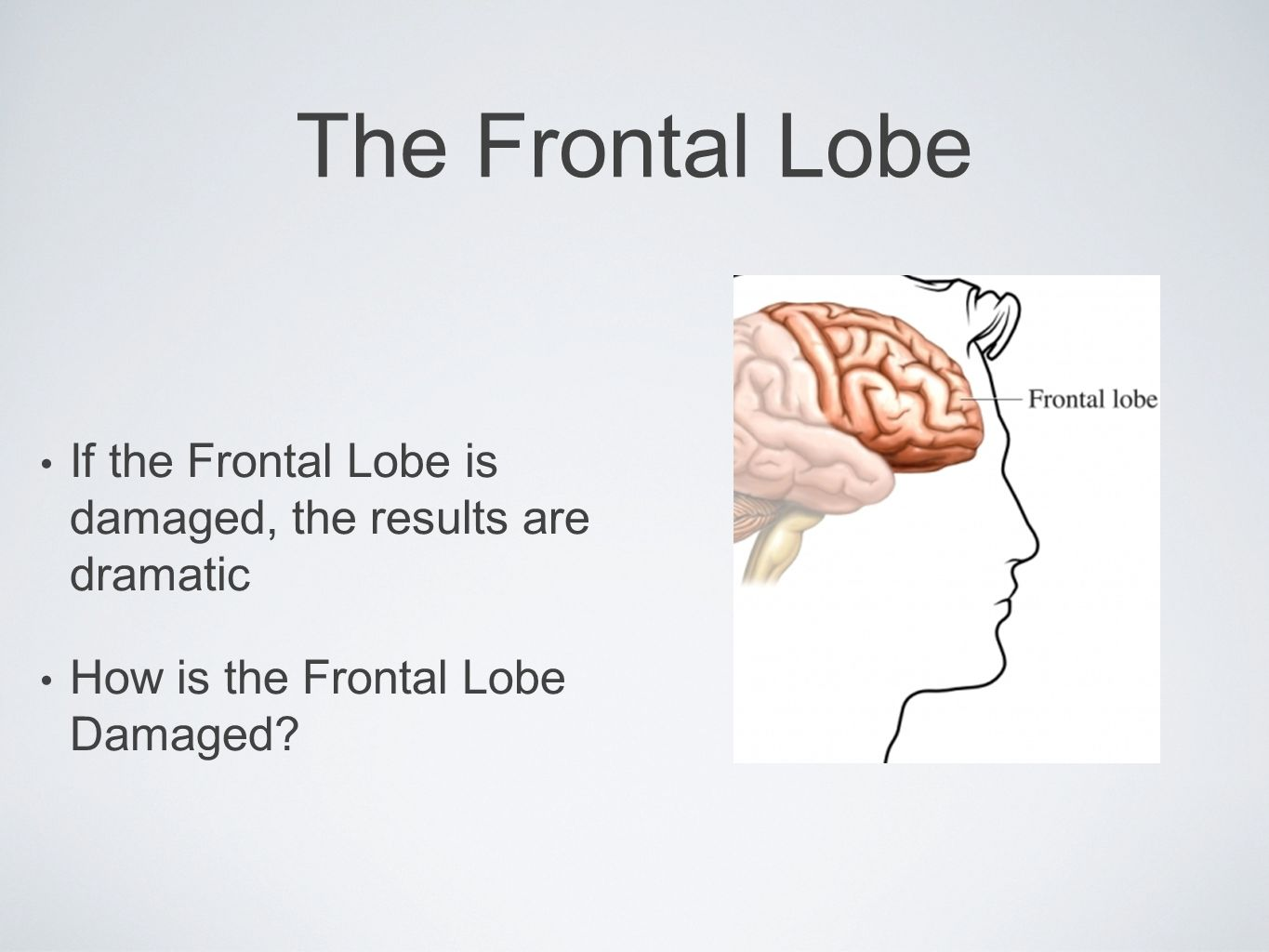 The Frontal Lobe If the Frontal Lobe is damaged, the results are dramatic How is the Frontal Lobe Damaged?