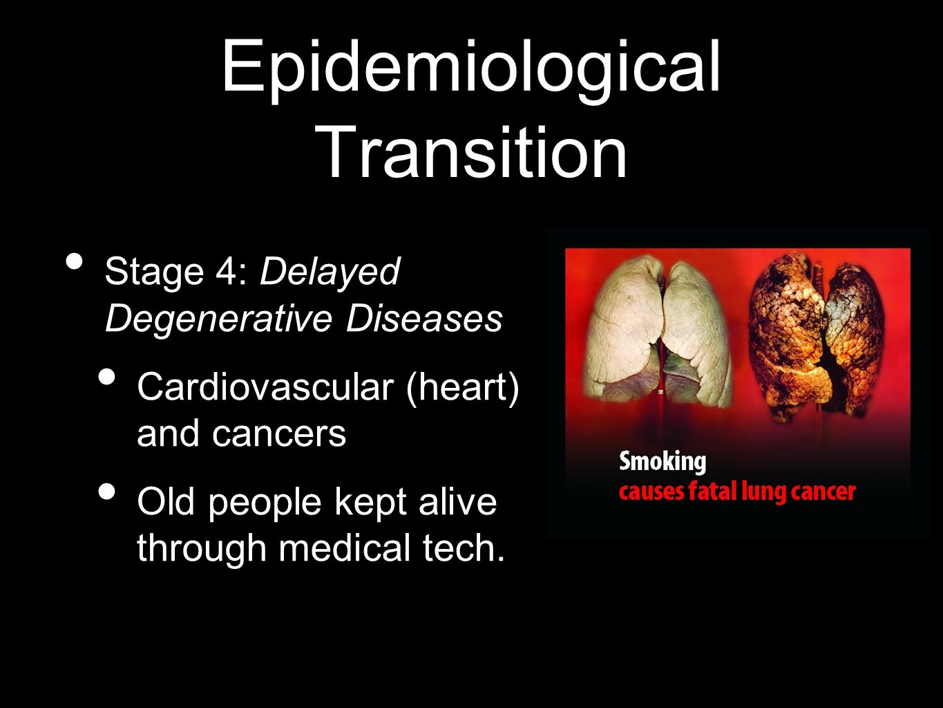 Epidemiological Transition Stage 4: Delayed Degenerative Diseases Cardiovascular (heart) and cancers Old people kept alive through medical tech.