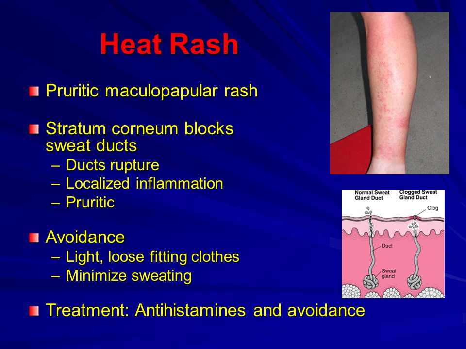 Heat Rash Heat Rash Pruritic maculopapular rash Stratum corneum blocks sweat ducts –Ducts rupture –Localized inflammation –Pruritic Avoidance –Light,