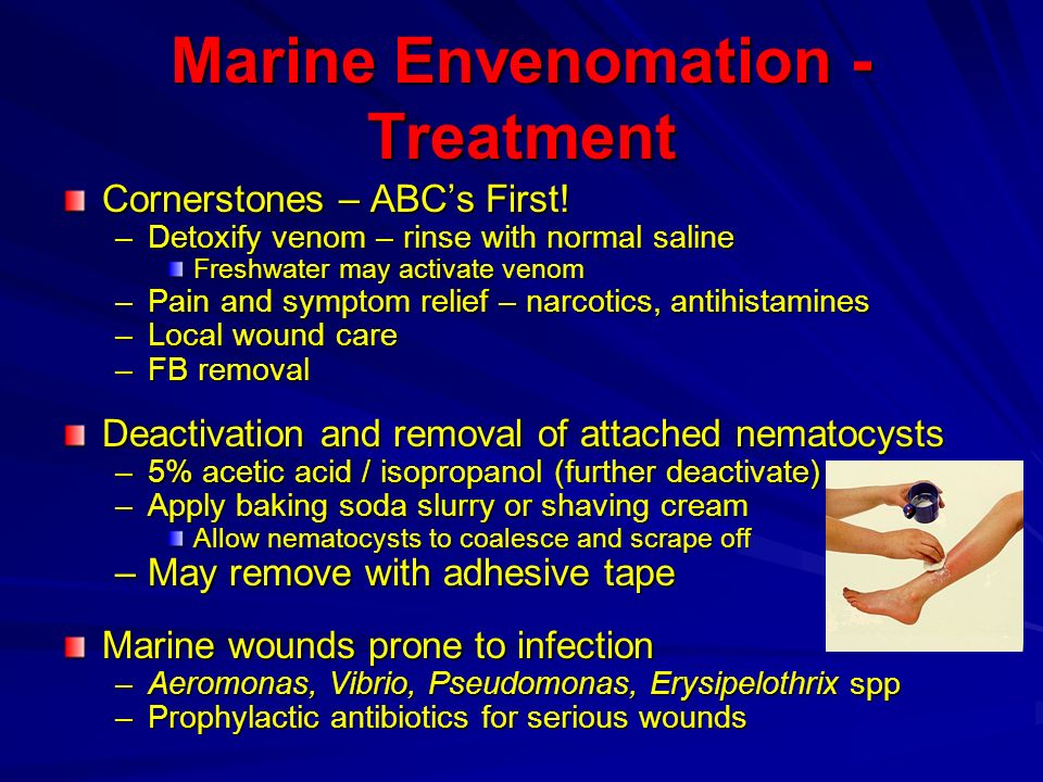 Marine Envenomation - Treatment Cornerstones – ABCs First! –Detoxify venom – rinse with normal saline Freshwater may activate venom –Pain and symptom