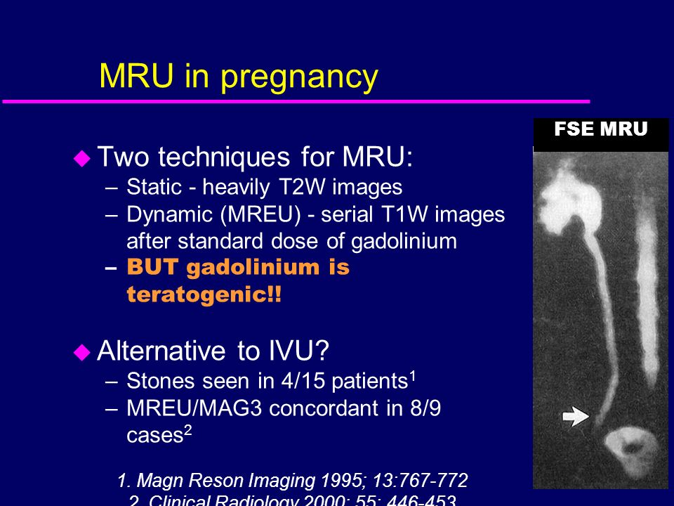 MRU in pregnancy u Two techniques for MRU: –Static - heavily T2W images –Dynamic (MREU) - serial T1W images after standard dose of gadolinium –BUT gad