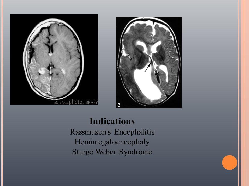 Indications Rassmusen's Encephalitis Hemimegaloencephaly Sturge Weber Syndrome