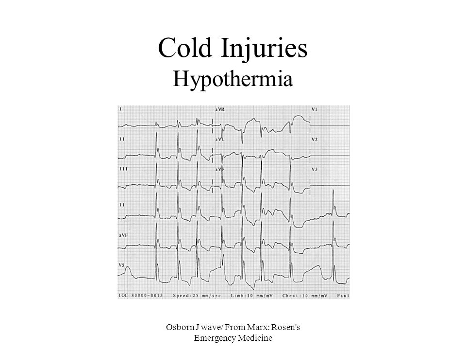 Osborn J wave/ From Marx: Rosen's Emergency Medicine Cold Injuries Hypothermia