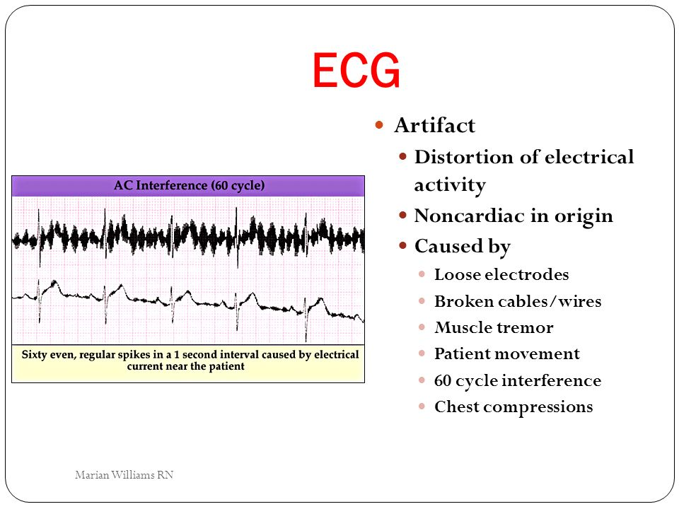 ECG Artifact Distortion of electrical activity Noncardiac in origin Caused by Loose electrodes Broken cables/wires Muscle tremor Patient movement 60 c