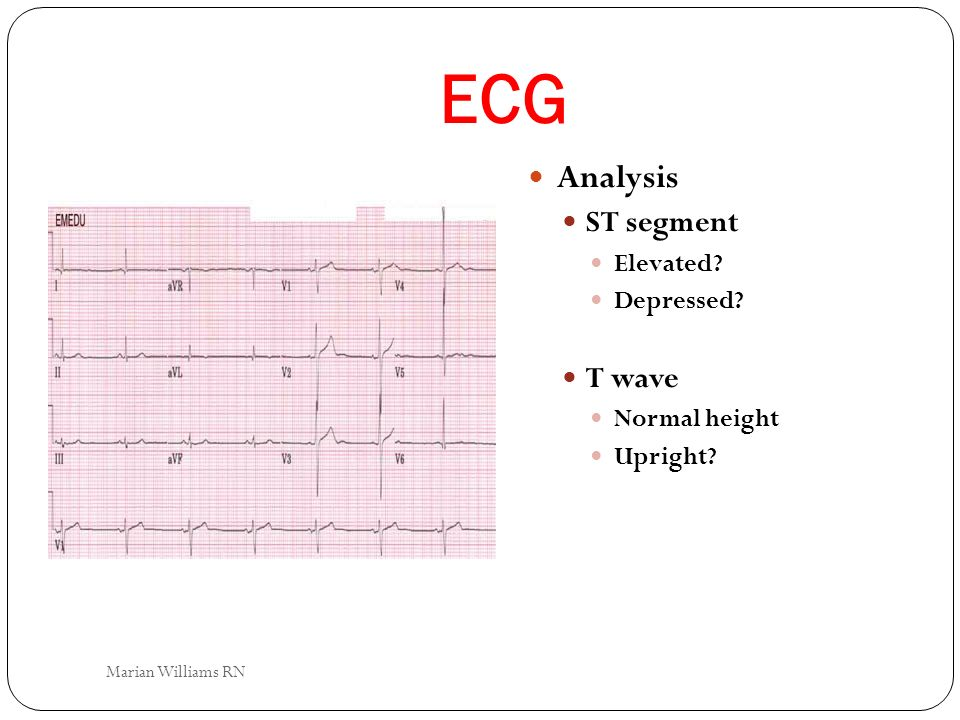 ECG Analysis ST segment Elevated? Depressed? T wave Normal height Upright? Marian Williams RN