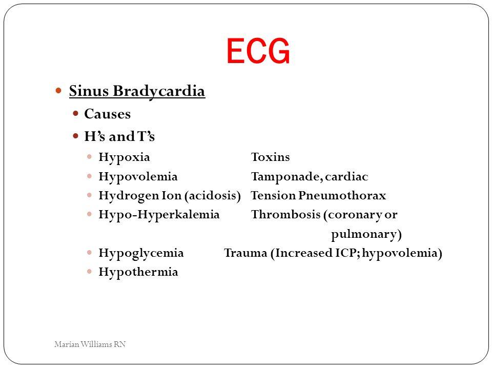 ECG Sinus Bradycardia Causes Hs and Ts HypoxiaToxins HypovolemiaTamponade, cardiac Hydrogen Ion (acidosis) Tension Pneumothorax Hypo-HyperkalemiaThrom