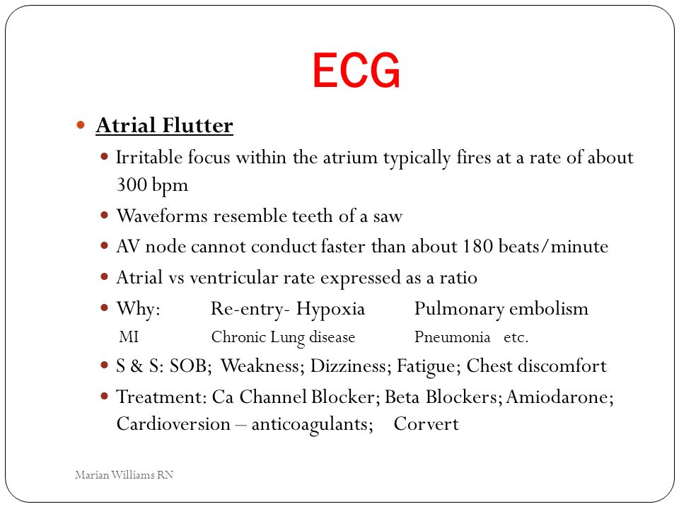 ECG Atrial Flutter Irritable focus within the atrium typically fires at a rate of about 300 bpm Waveforms resemble teeth of a saw AV node cannot condu