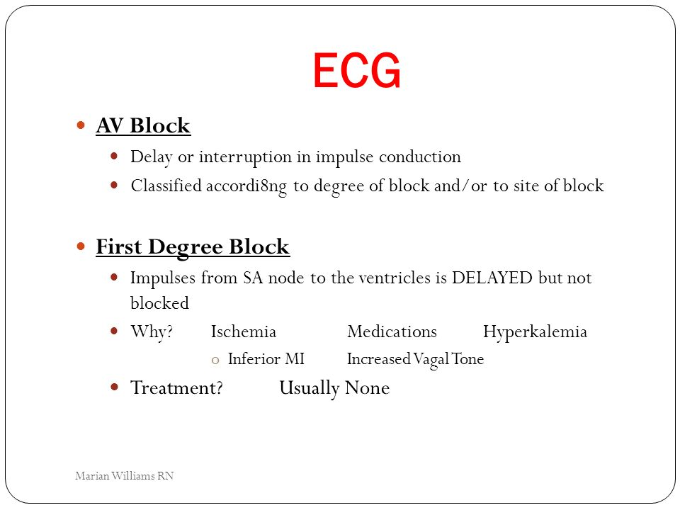 ECG AV Block Delay or interruption in impulse conduction Classified accordi8ng to degree of block and/or to site of block First Degree Block Impulses
