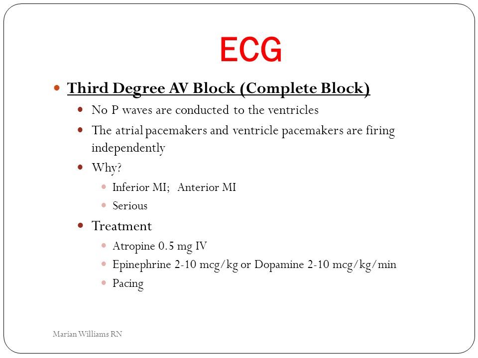 ECG Third Degree AV Block (Complete Block) No P waves are conducted to the ventricles The atrial pacemakers and ventricle pacemakers are firing indepe