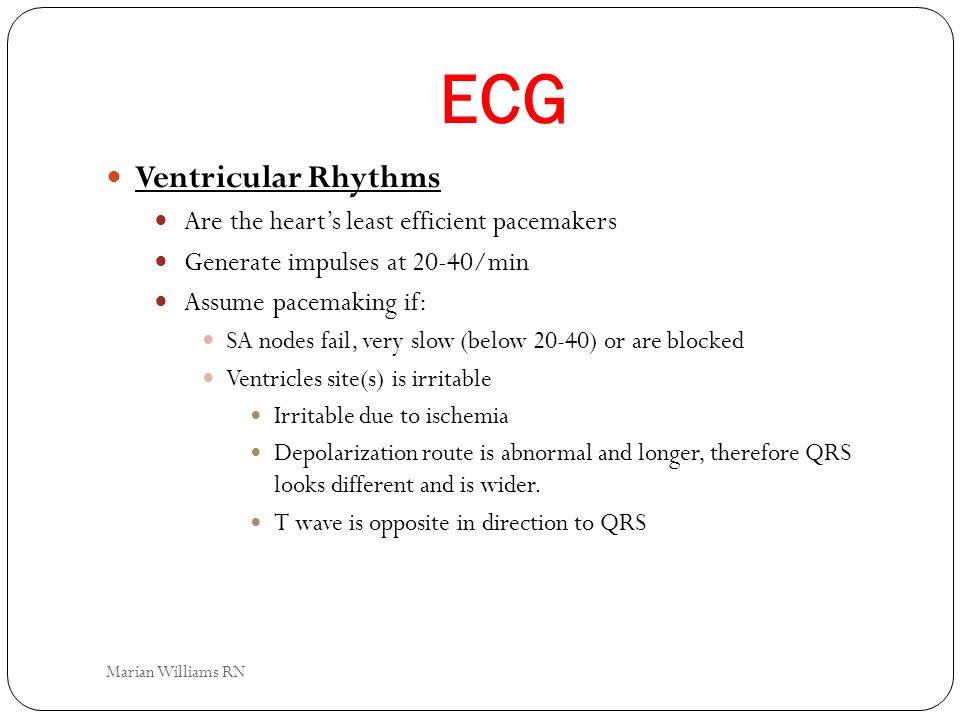 ECG Ventricular Rhythms Are the hearts least efficient pacemakers Generate impulses at 20-40/min Assume pacemaking if: SA nodes fail, very slow (below