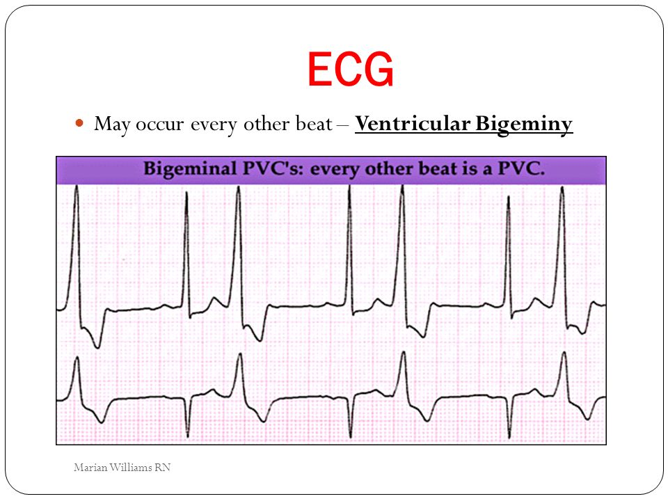 ECG May occur every other beat – Ventricular Bigeminy Marian Williams RN