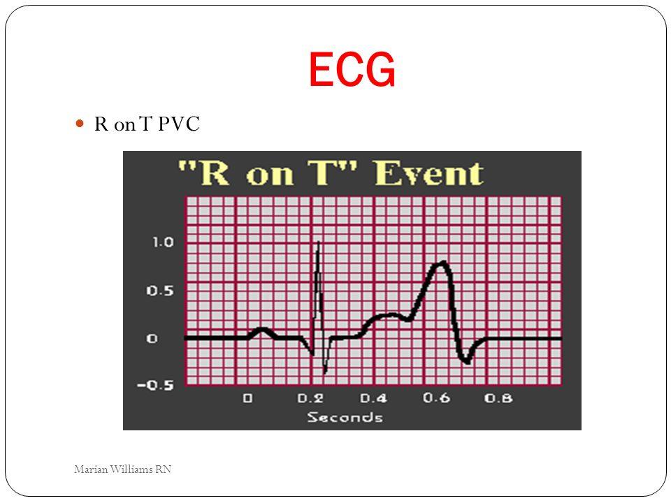 ECG R on T PVC Marian Williams RN