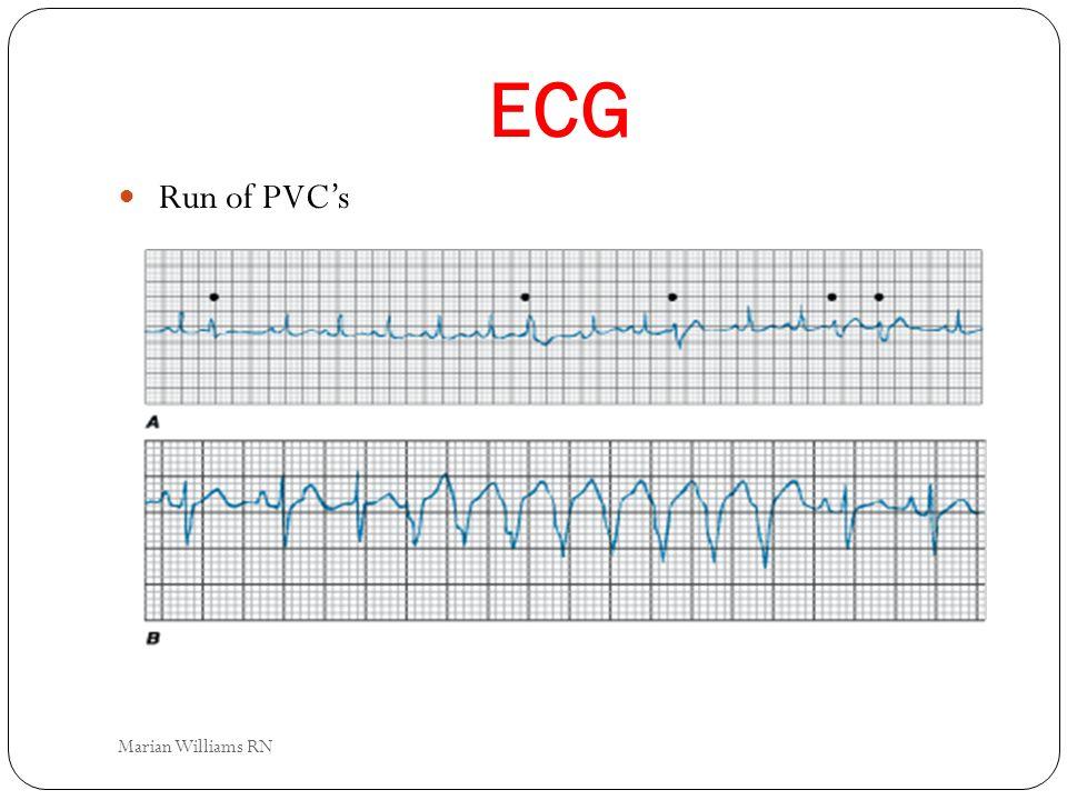 ECG Run of PVCs Marian Williams RN