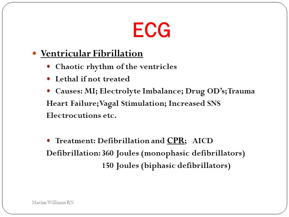 ECG Ventricular Fibrillation Chaotic rhythm of the ventricles Lethal if not treated Causes: MI; Electrolyte Imbalance; Drug ODs; Trauma Heart Failure;