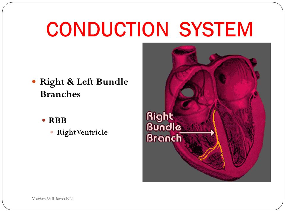 CONDUCTION SYSTEM Right & Left Bundle Branches RBB Right Ventricle Marian Williams RN