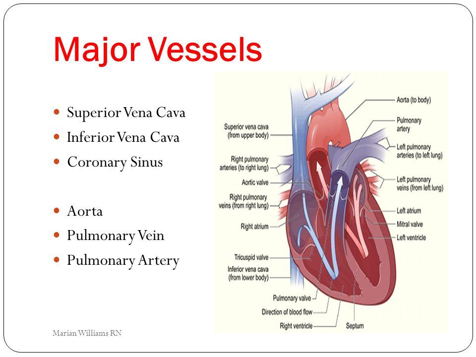 Major Vessels Superior Vena Cava Inferior Vena Cava Coronary Sinus Aorta Pulmonary Vein Pulmonary Artery Marian Williams RN