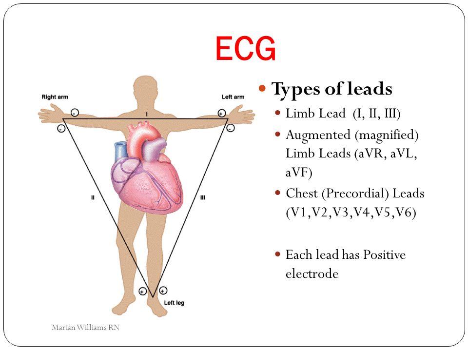 ECG Types of leads Limb Lead (I, II, III) Augmented (magnified) Limb Leads (aVR, aVL, aVF) Chest (Precordial) Leads (V1,V2,V3,V4,V5,V6) Each lead has