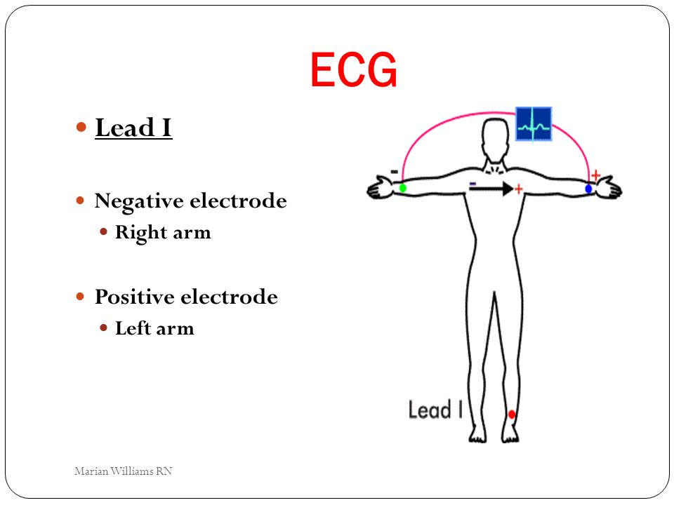ECG Lead I Negative electrode Right arm Positive electrode Left arm Marian Williams RN