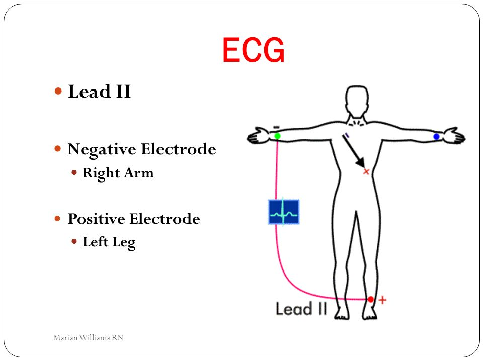 ECG Lead II Negative Electrode Right Arm Positive Electrode Left Leg Marian Williams RN