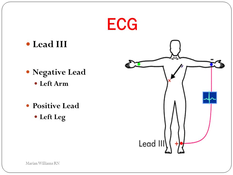 ECG Lead III Negative Lead Left Arm Positive Lead Left Leg Marian Williams RN