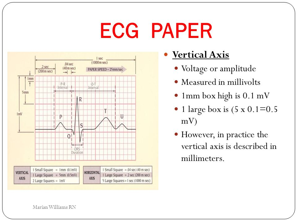 ECG PAPER Vertical Axis Voltage or amplitude Measured in millivolts 1mm box high is 0.1 mV 1 large box is (5 x 0.1=0.5 mV) However, in practice the ve