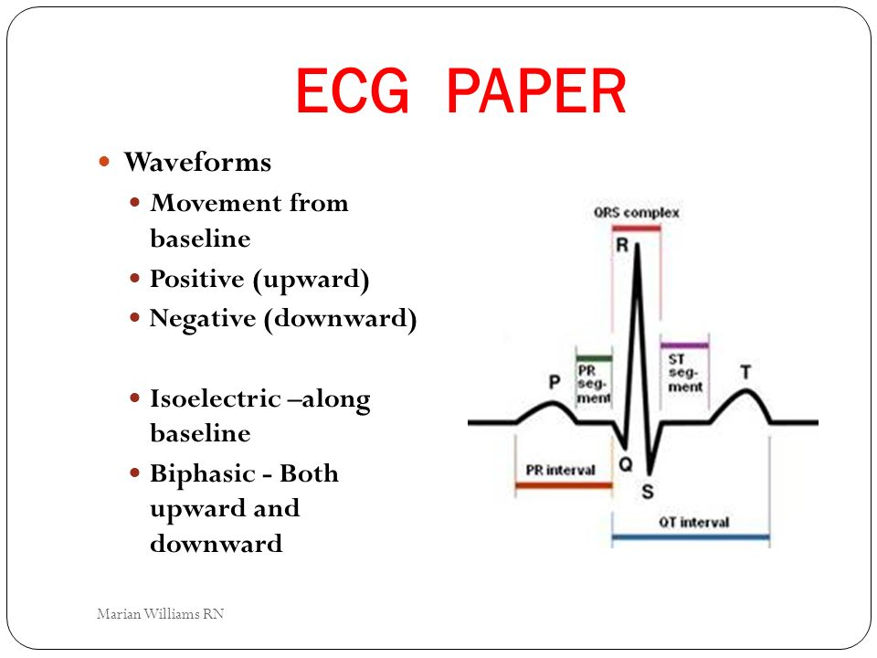 ECG PAPER Waveforms Movement from baseline Positive (upward) Negative (downward) Isoelectric –along baseline Biphasic - Both upward and downward Maria