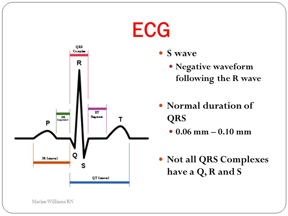 ECG S wave Negative waveform following the R wave Normal duration of QRS 0.06 mm – 0.10 mm Not all QRS Complexes have a Q, R and S Marian Williams RN
