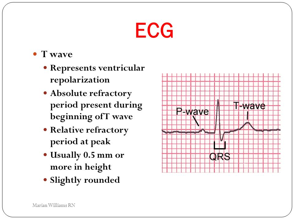 ECG T wave Represents ventricular repolarization Absolute refractory period present during beginning of T wave Relative refractory period at peak Usua
