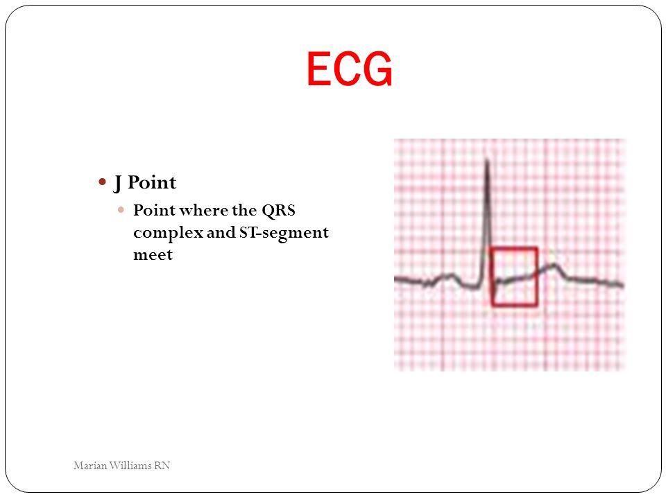 ECG J Point Point where the QRS complex and ST-segment meet Marian Williams RN