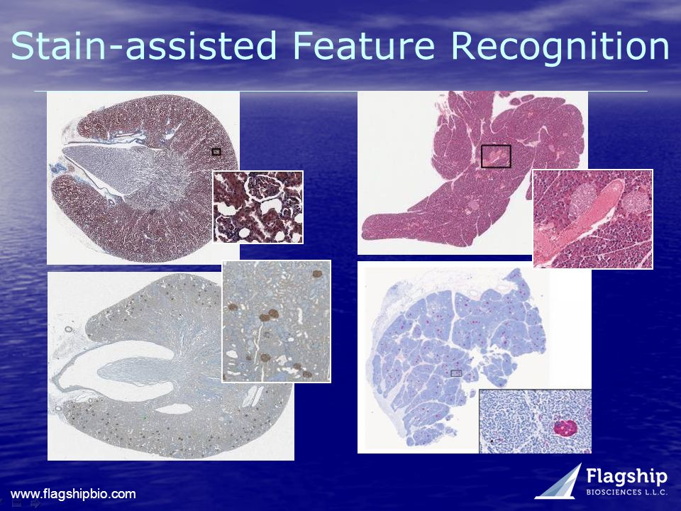 www.flagshipbio.com Stain-assisted Feature Recognition
