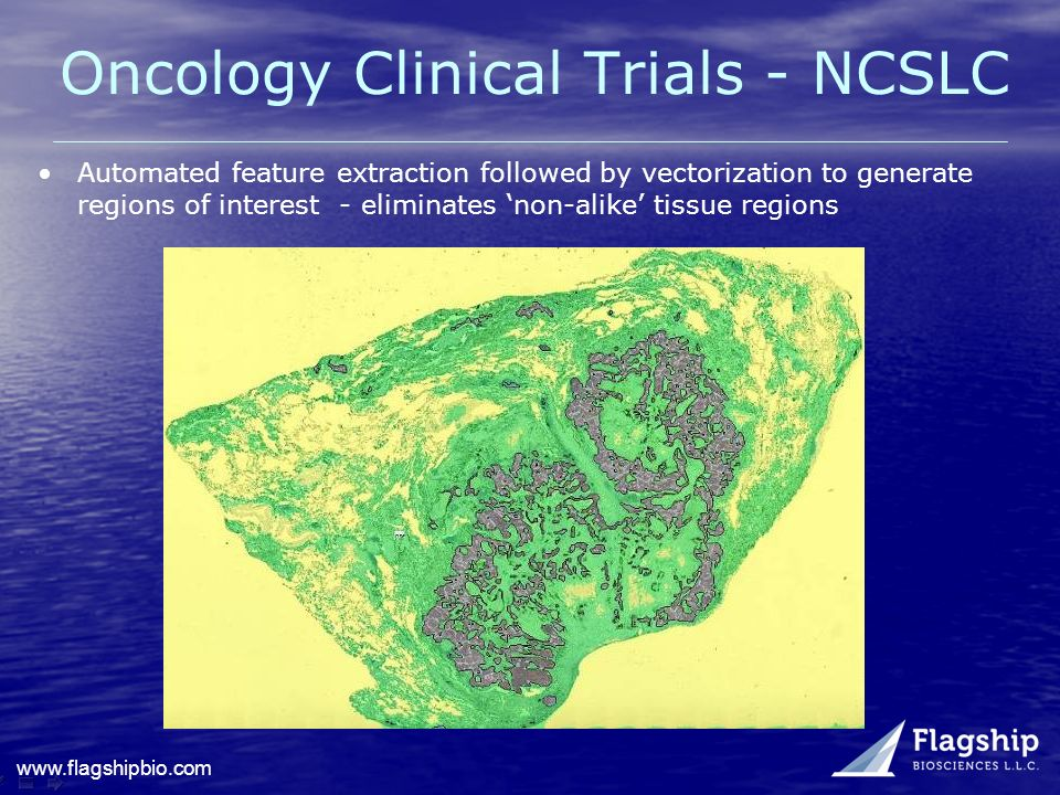 www.flagshipbio.com Oncology Clinical Trials - NCSLC Automated feature extraction followed by vectorization to generate regions of interest - eliminat