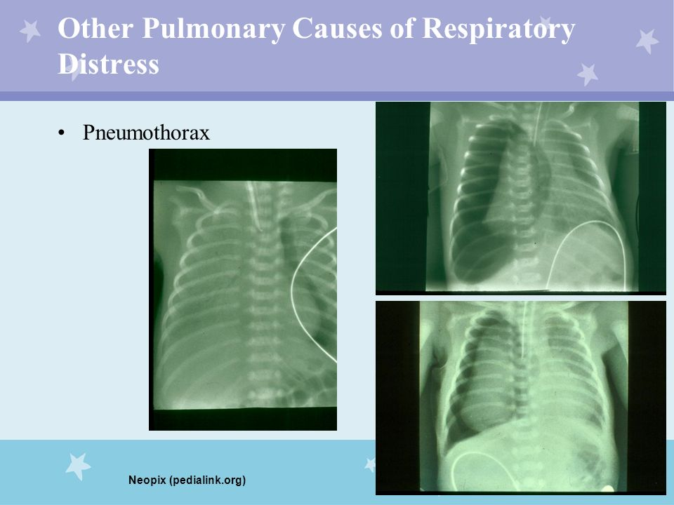 Other Pulmonary Causes of Respiratory Distress Pneumothorax Neopix (pedialink.org)