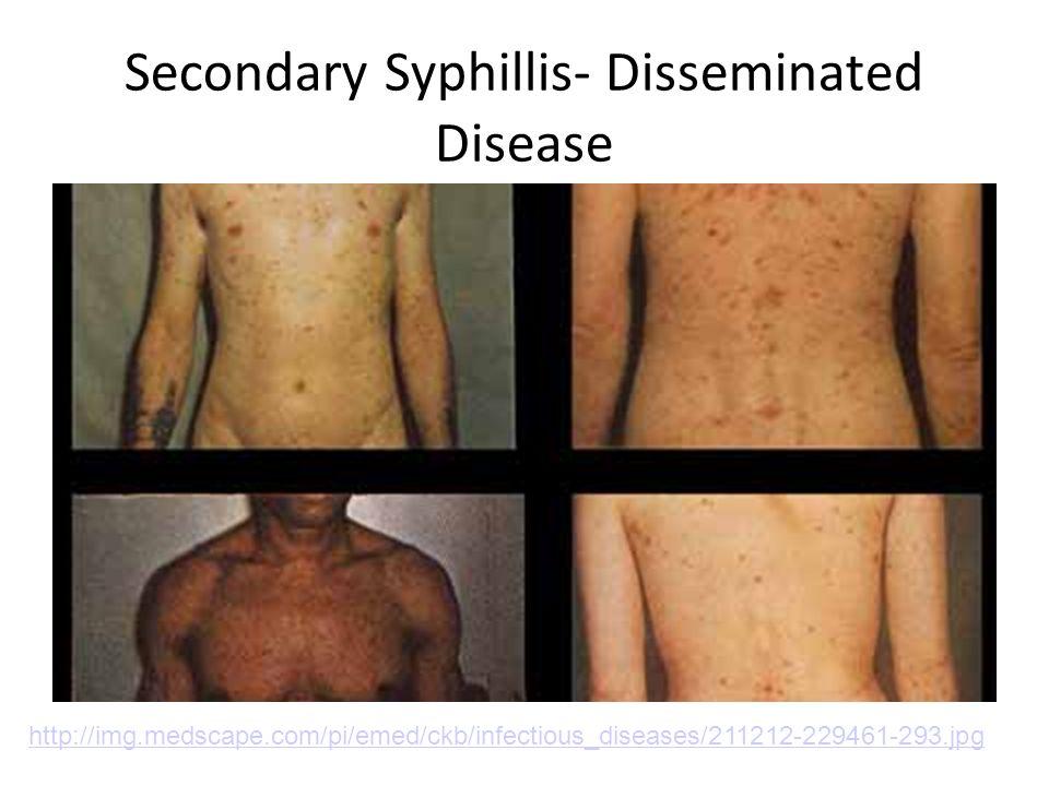 Secondary Syphillis- Disseminated Disease http://img.medscape.com/pi/emed/ckb/infectious_diseases/211212-229461-293.jpg