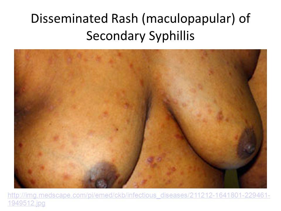 Disseminated Rash (maculopapular) of Secondary Syphillis http://img.medscape.com/pi/emed/ckb/infectious_diseases/211212-1641801-229461- 1949512.jpg