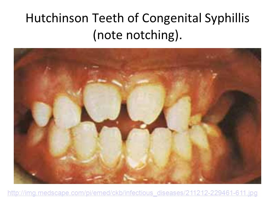 Hutchinson Teeth of Congenital Syphillis (note notching). http://img.medscape.com/pi/emed/ckb/infectious_diseases/211212-229461-611.jpg