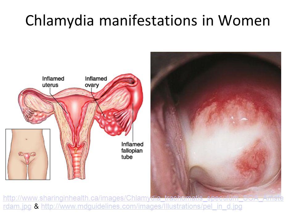 Chlamydia manifestations in Women http://www.sharinginhealth.ca/images/Chlamydia_trachomatis_speculum_SOA_Amste rdam.jpghttp://www.sharinginhealth.ca/
