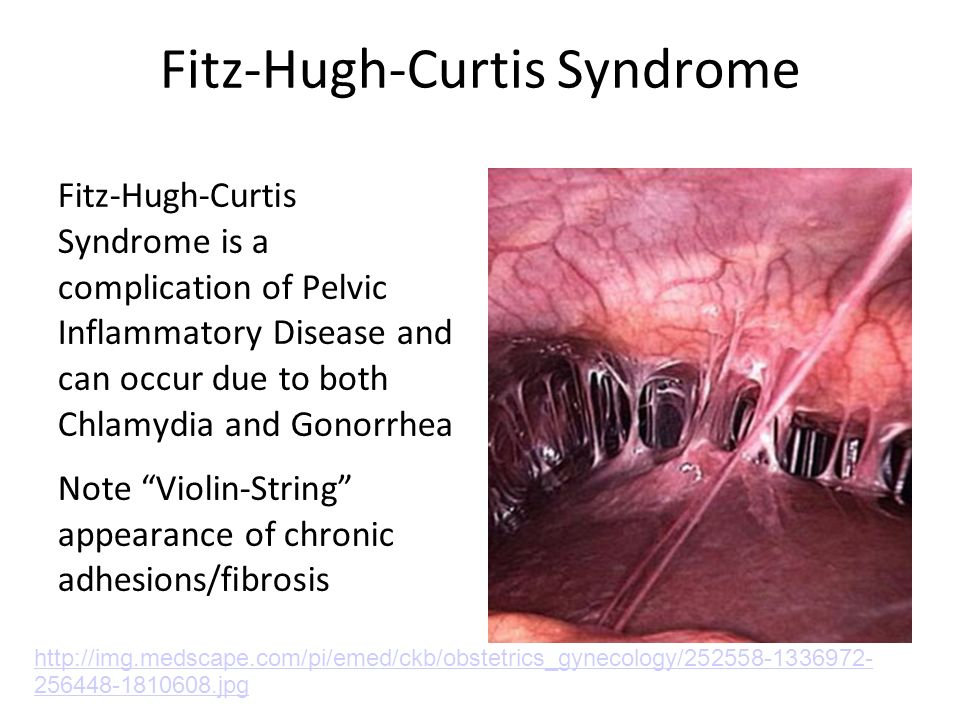 Fitz-Hugh-Curtis Syndrome Fitz-Hugh-Curtis Syndrome is a complication of Pelvic Inflammatory Disease and can occur due to both Chlamydia and Gonorrhea