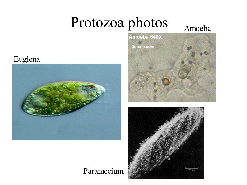 Protozoa photos Euglena Amoeba Paramecium