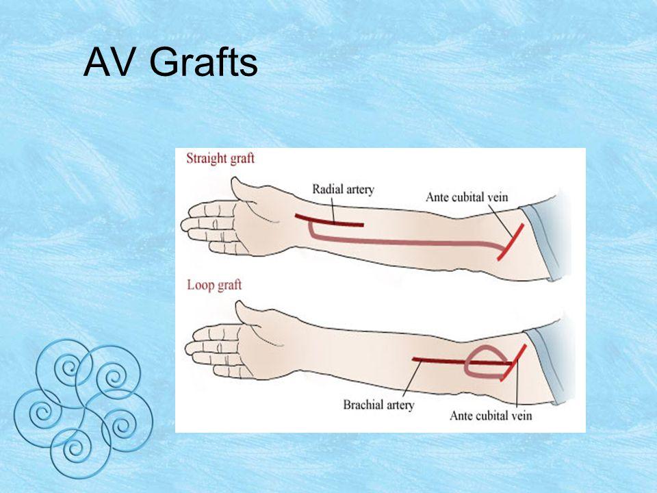 AV Grafts