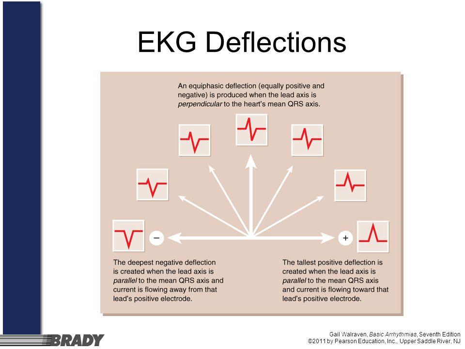 Gail Walraven, Basic Arrhythmias, Seventh Edition ©2011 by Pearson Education, Inc., Upper Saddle River, NJ EKG Deflections